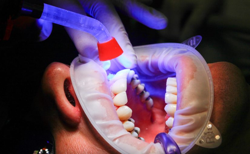 Zła dieta odżywiania się to większe deficyty w jamie ustnej a dodatkowo ich zgubę